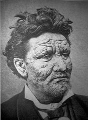 Zdjęcie człowieka w wieku 24 lat chorego na trąd, Wikipedia