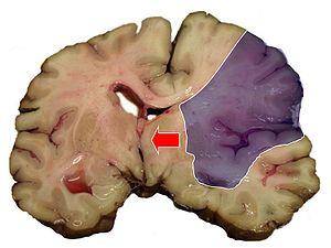 Udar mózgu niedokrwienny- rozległy zawał mózgu w obszarze tętnicy środkowej mózgu z masywnym obrzękiem półkuli i towarzyszącym przemieszczeniem struktur środkowych (strzałka). Wikipedia