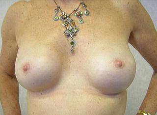 Rekonstrukcja piersi po obustronnej mastektomii, Wikimedia